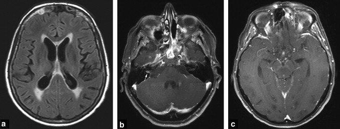 Biểu hiện của ung thư di căn não - ảnh 1