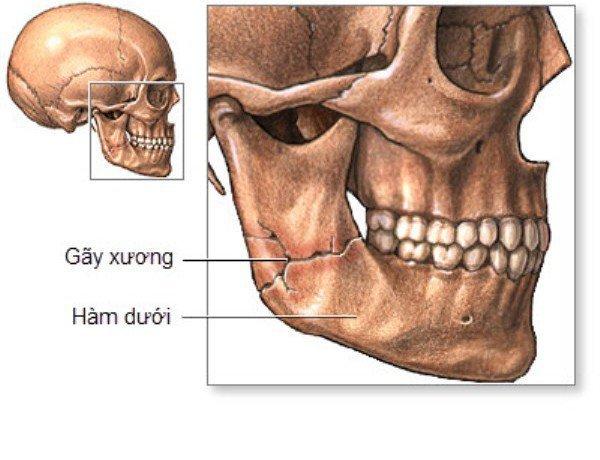 Gãy xương hàm mặt các phương pháp điều trị - ảnh 1