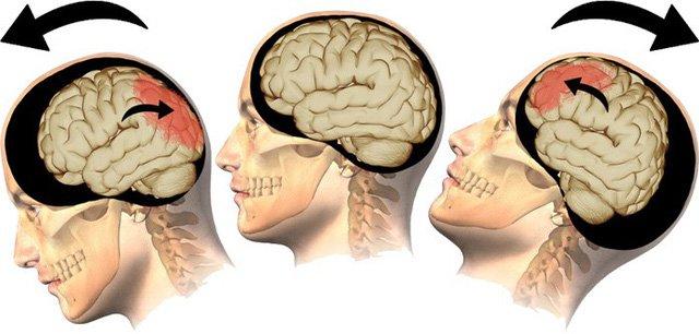 Chấn thương sọ não: Nhận biết và điều trị thế nào? - ảnh 1