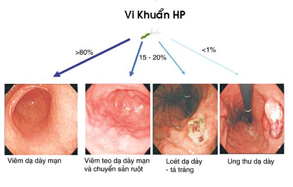 Nhiễm vi khuẩn HP nếu Gắp thức ăn cho nhau - ảnh 2