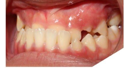 Chỉnh sửa xương hàm để chữa dứt điểm lệch khớp cắn - ảnh 1