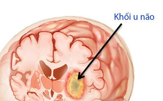 Triệu chứng bệnh u não và cách điều trị - ảnh 1