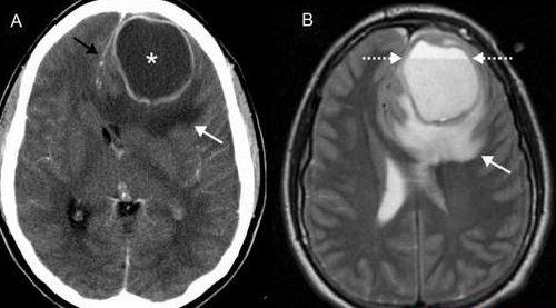 Áp xe não: Căn bệnh nguy hiểm - Cần được điều trị như thế nào? - ảnh 1