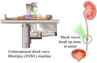 Nội soi tán sỏi ngoài cơ thể (ESWL) phù hợp với bệnh nhân nào? Được thực hiện ra sao? - ảnh 1