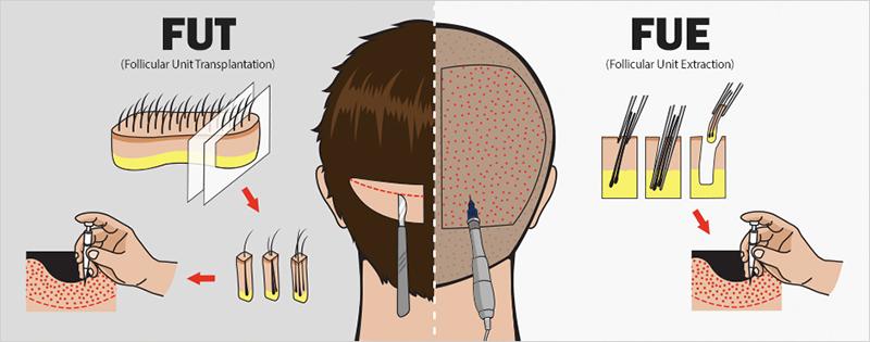 Cấy tóc: Những điều cần biết - ảnh 2