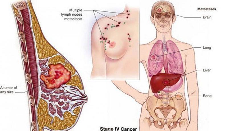 Ung thư di căn có sử dụng liệu pháp miễn dịch tự thân được không? - ảnh 1