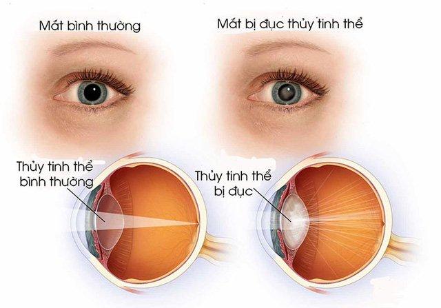 Bệnh đục thủy tinh thể có thể gây mù lòa - Cần phát hiện sớm để điều trị - ảnh 1