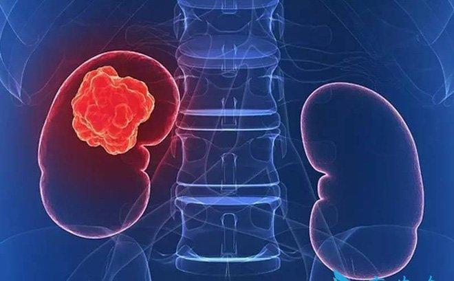Những dấu hiệu liên quan đến ung thư thận mọi người cần biết - ảnh 2