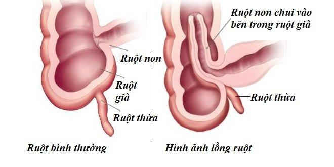 Lồng ruột trẻ em là gì/ Nguyên nhân và Cách điều trị - ảnh 1