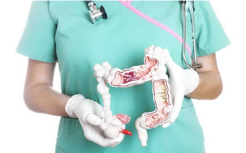 Chẩn đoán và điều trị viêm ruột thừa cấp - ảnh 1