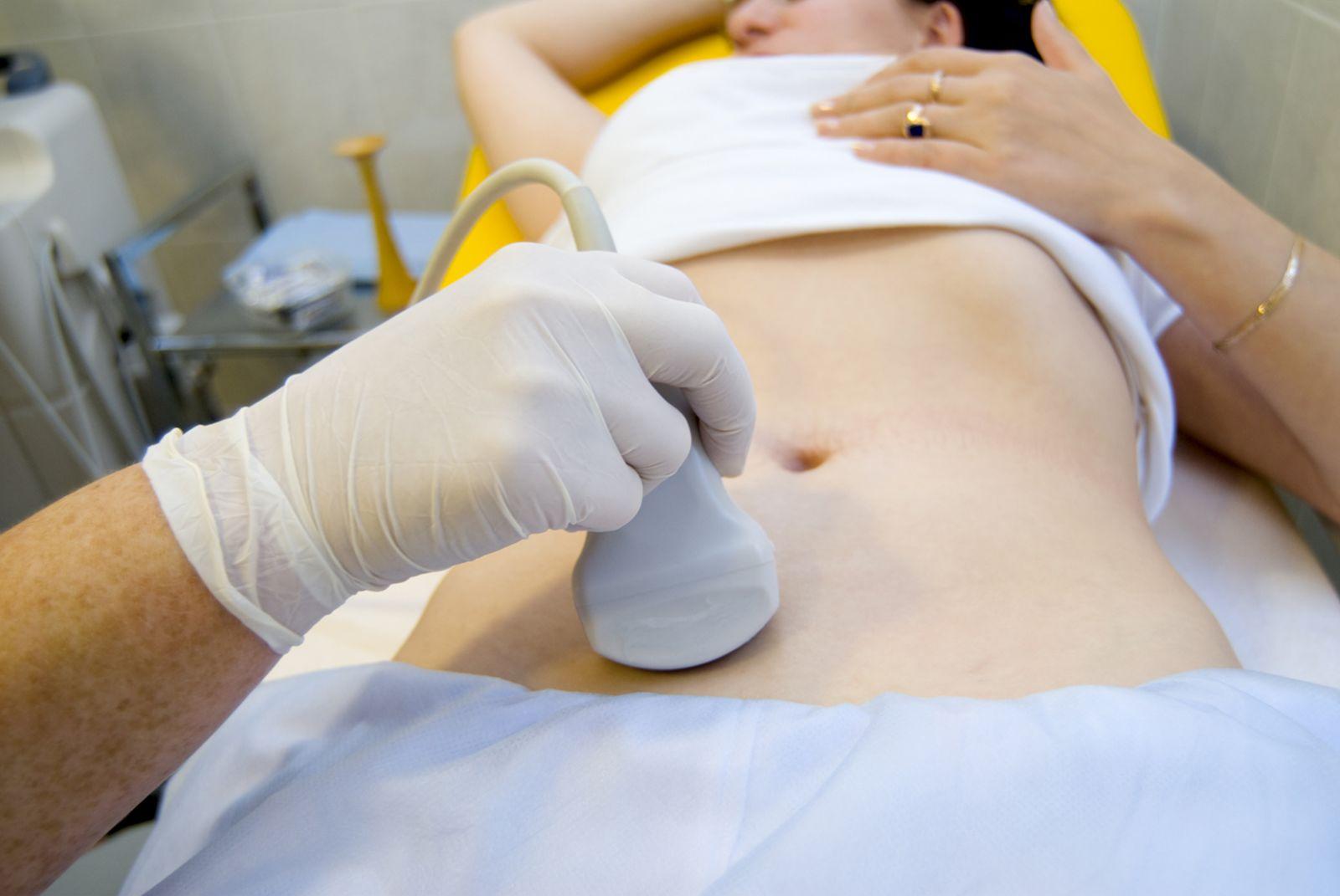Chẩn đoán và điều trị viêm ruột thừa cấp - ảnh 3