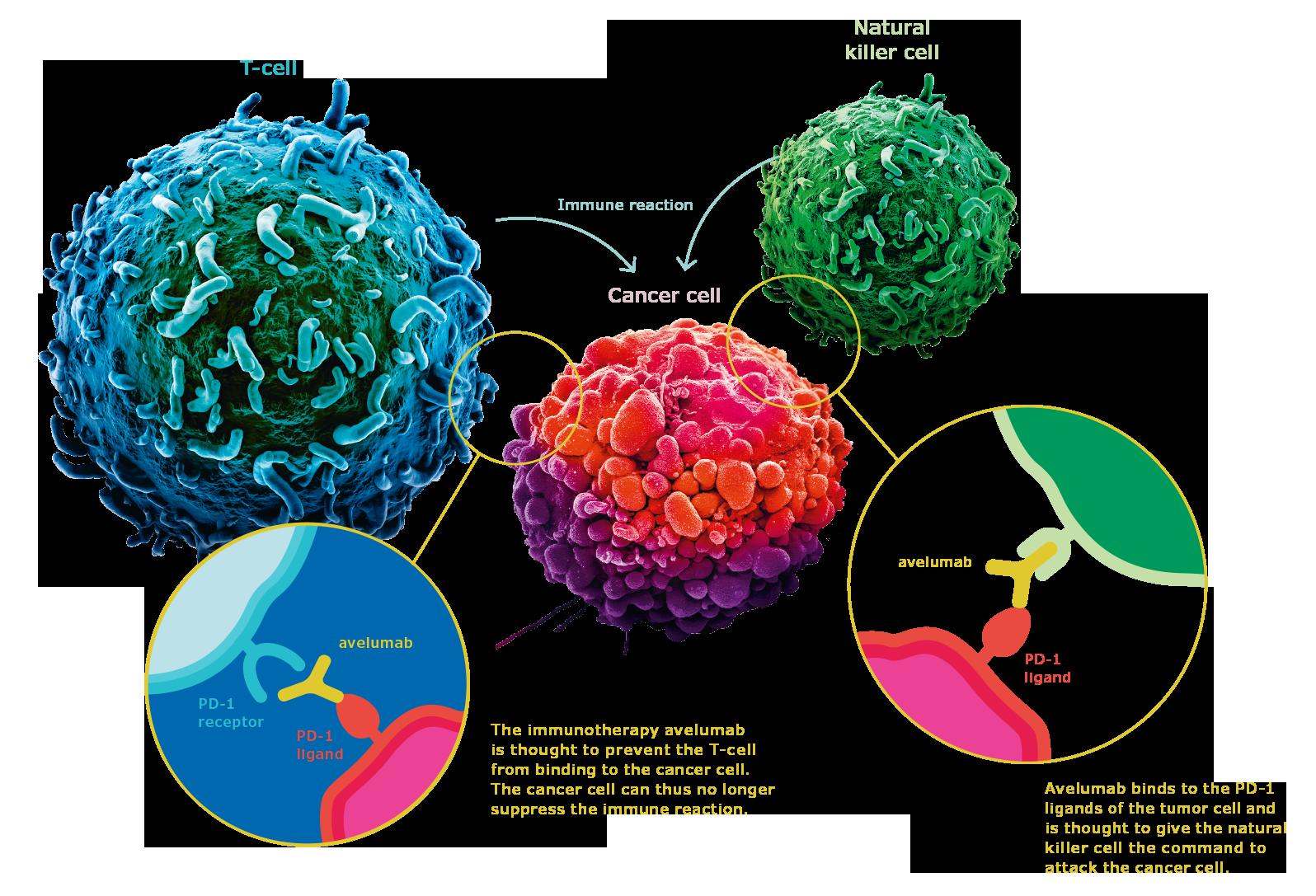 Thuốc miễn dịch Keytruda trong điều trị ung thư dạ dày thực quản - ảnh 1