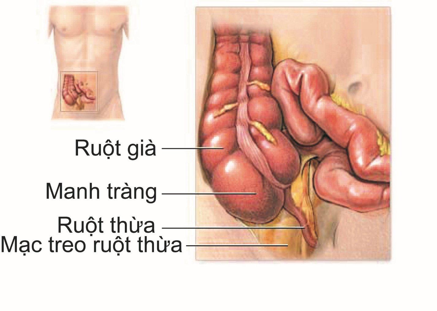 Viêm ruột thừa diễn biến thế nào và kéo dài bao lâu? - ảnh 1