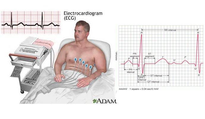 Xét nghiệm và chẩn đoán huyết áp thấp - ảnh 1