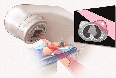 Cẩm nang hỗ trợ bệnh nhân xạ trị vùng đầu cổ - ảnh 1