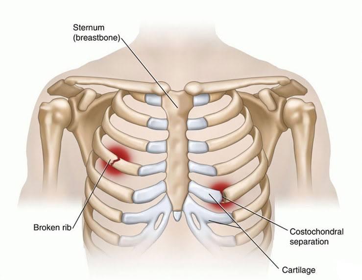 Gãy xương có biến chứng nguy hiểm nếu không điều trị sớm - ảnh 2