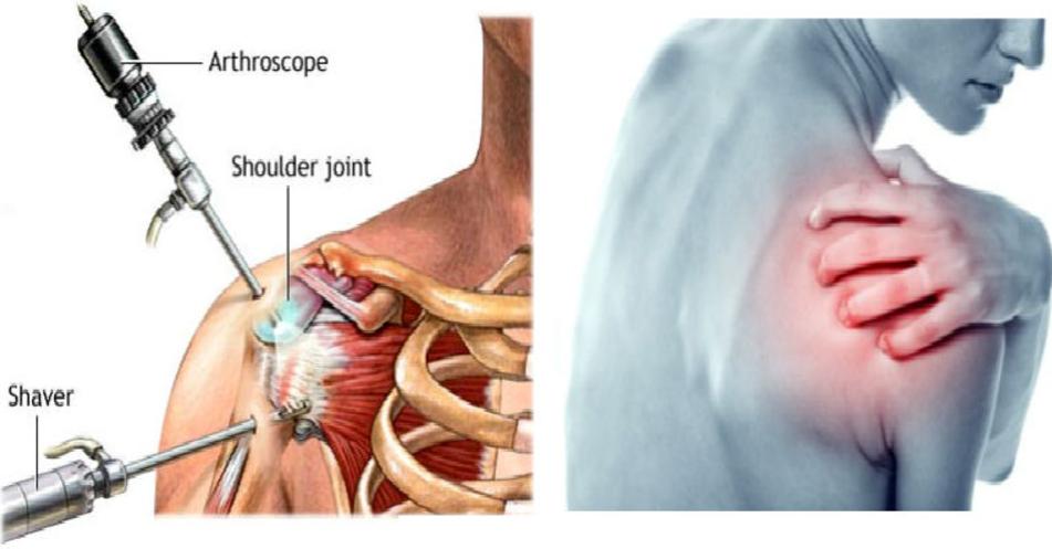 Phương pháp Nội soi Chẩn đoán các bệnh về khớp vai - ảnh 1