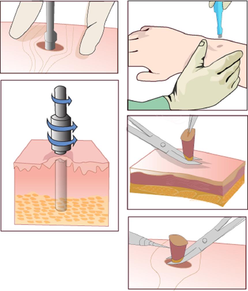Sinh thiết da trong chẩn đoán ung thư da - ảnh 2
