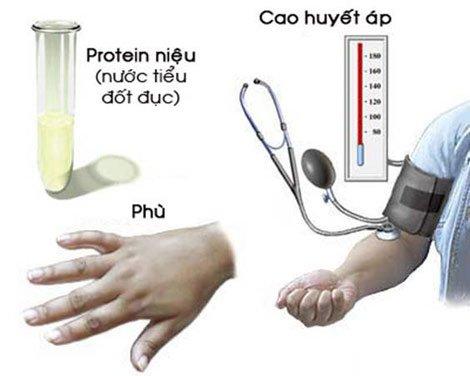 Xét nghiệm yếu tố tân tạo mạch máu PLGF trong 3 tháng Phát hiện sớm tiền sản giật - ảnh 1