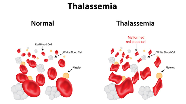Làm thế nào để phát hiện bệnh thalassemia hay tan máu bẩm sinh ? - ảnh 1