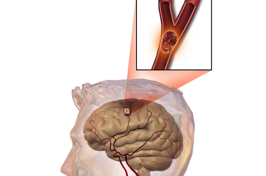 Chăm sóc và khả năng hồi phục bệnh nhân nhồi máu não - ảnh 1