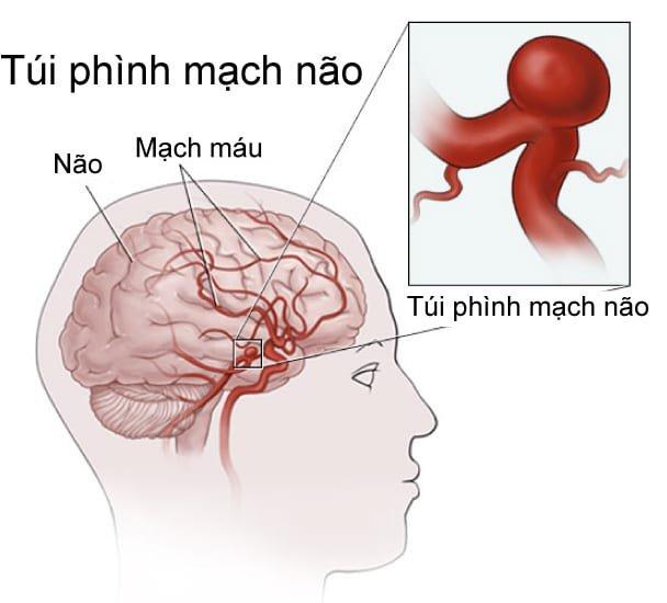 Đột nhiên đau đầu dữ dội: Cảnh giác dị dạng mạch máu não và cách phòng tránh - ảnh 1