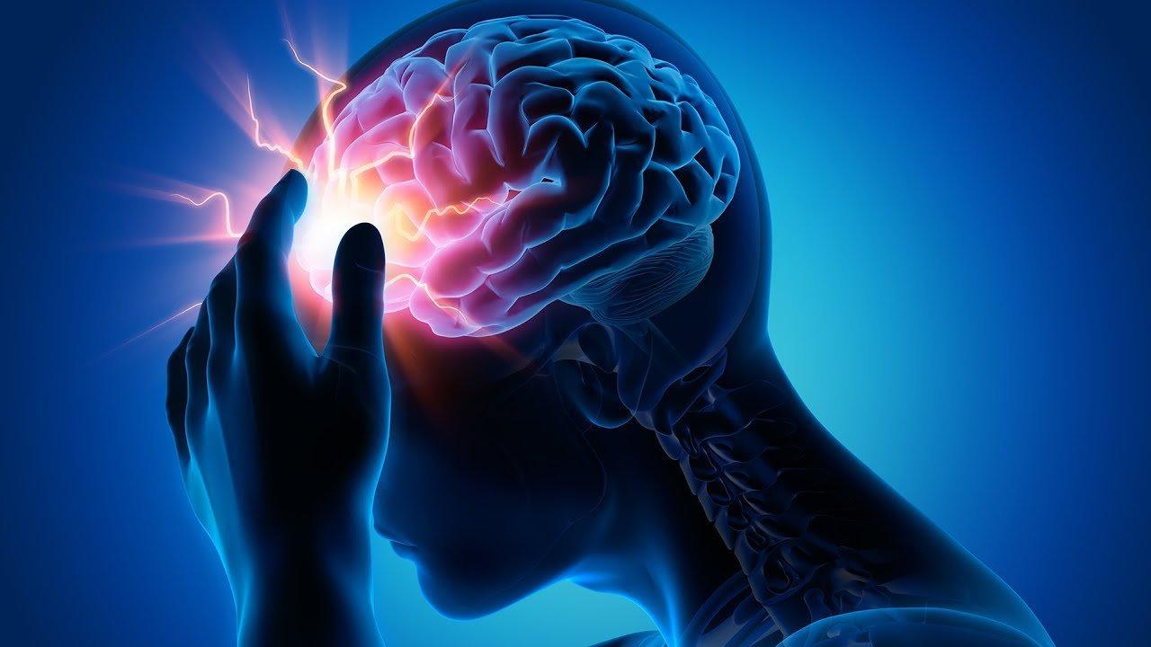 Thuốc tiêu sợi huyết Điều trị nhồi máu não - ảnh 1