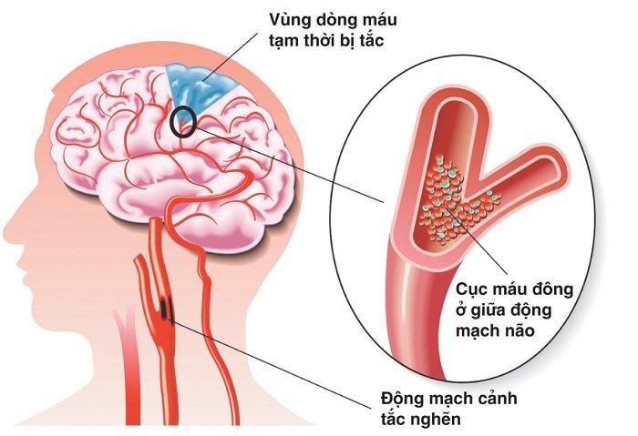 Sự hình thành cục máu đông trong tai biến mạch máu não - ảnh 1