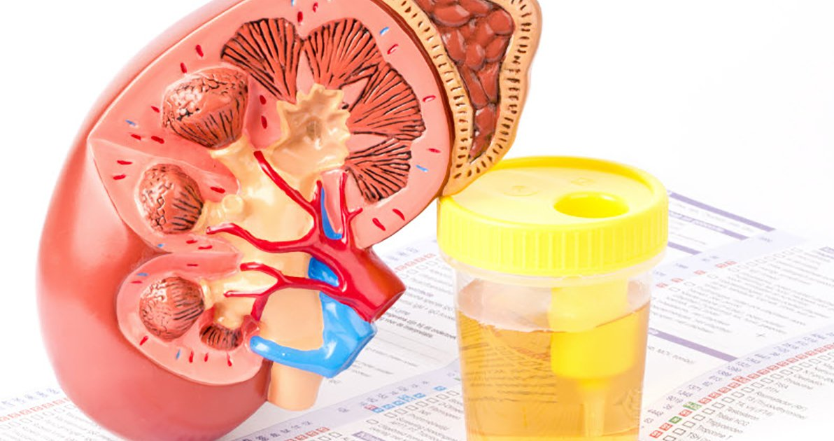 Viêm cầu thận mạn - Chẩn đoán và điều trị - ảnh 1