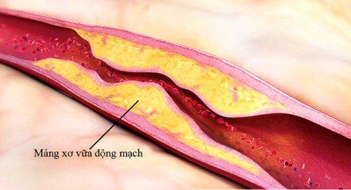 Cao huyết áp là bệnh gì? điều trị thế nào? - ảnh 1