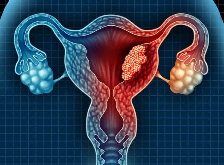 U nang buồng trứng là bệnh gì? Liệu có thể trở thành ung thư buồng trứng? - ảnh 1
