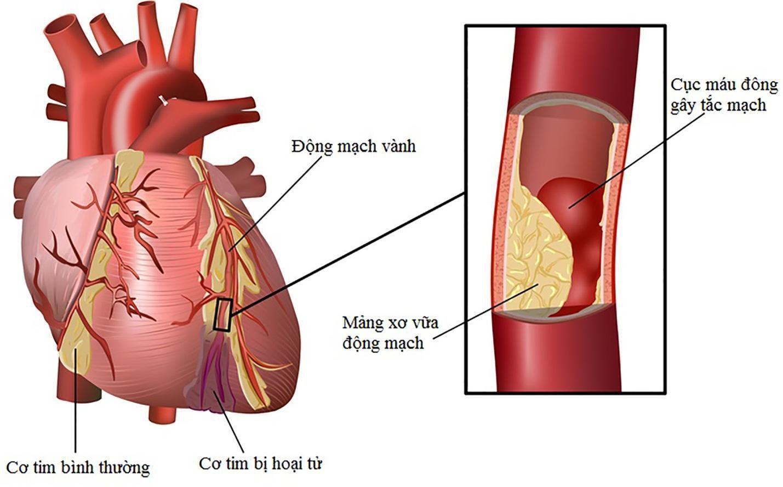 Hẹp mạch vành dễ dẫn đến nhồi máu cơ tim - ảnh 1