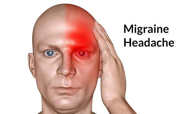 Phân biệt đau nửa đầu và bệnh thiên đầu thống (tăng nhãn áp - glocom) - ảnh 1