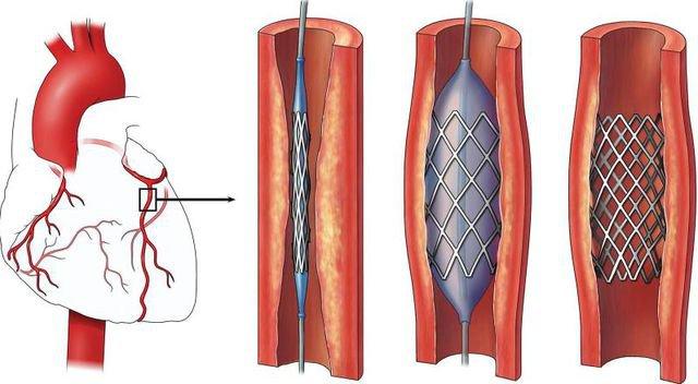 Hẹp mạch vành: Khi nào dùng thuốc, khi nào đặt stent, khi nào phải mổ? - ảnh 2