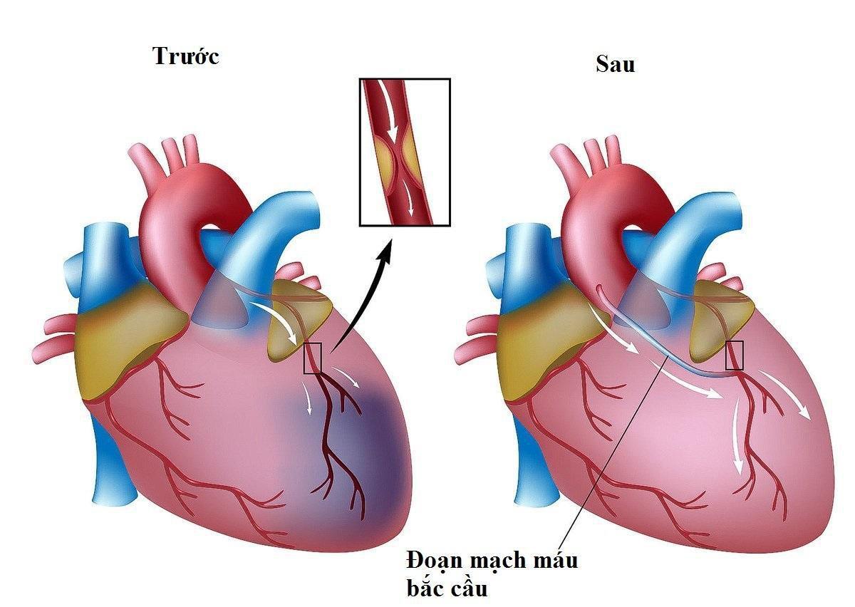 Hẹp mạch vành: Khi nào dùng thuốc, khi nào đặt stent, khi nào phải mổ? - ảnh 3