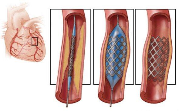 Nong mạch vành và đặt stent: Chỉ định, quy trình thực hiện, biến chứng có thể xảy ra - ảnh 2