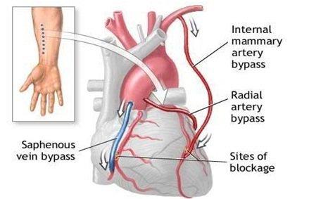 Ưu điểm và nguy cơ khi mổ bắc cầu động mạch chủ - động mạch vành - ảnh 3
