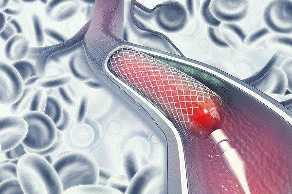 Đặt stent mạch vành được tiến hành như thế nào?, Khi nào cần can thiệp? - ảnh 1