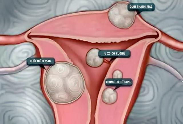 Những phương pháp điều trị u xơ tử cung - ảnh 1