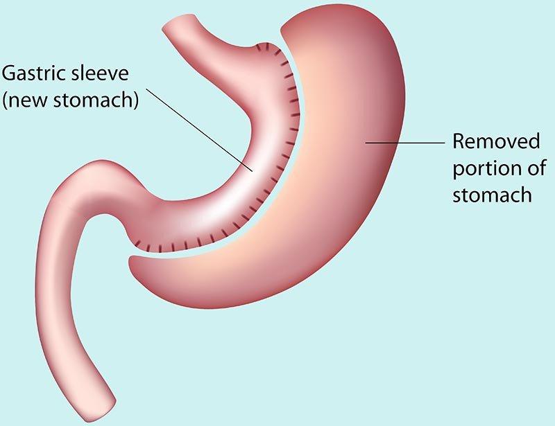 Trường hợp nào cần cắt dạ dày? - ảnh 1