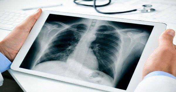 Viêm màng ngoài tim cấp - Chẩn đoán và điều trị - ảnh 1