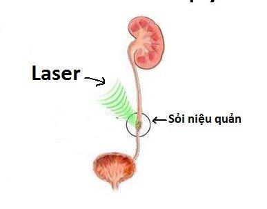 Nội soi tán sỏi niệu quản bằng laser:Tán được sỏi cỡ lớn, không tổn thương niệu quản - ảnh 1