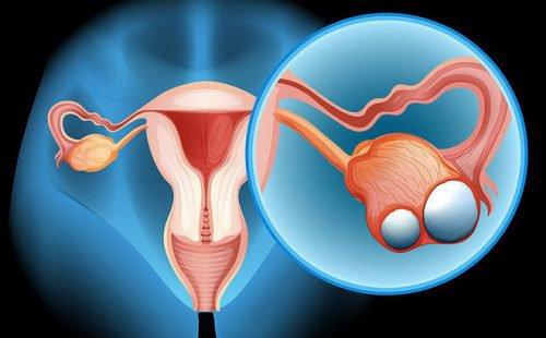 Phẫu thuật nội soi cắt u nang buồng trứng những điều cần biết - ảnh 1