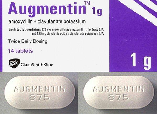 Những tác dụng phụ của thuốc Augmentin mọi người cần biết - ảnh 2