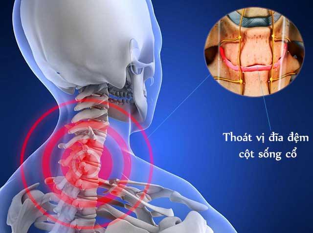 Đốt sống cổ: Đặc điểm, chức năng và Các bệnh thường gặp - ảnh 3