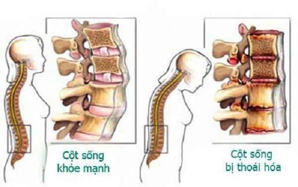 Đốt sống thắt lưng: Đặc điểm, chức năng và Các bệnh thường gặp - ảnh 2