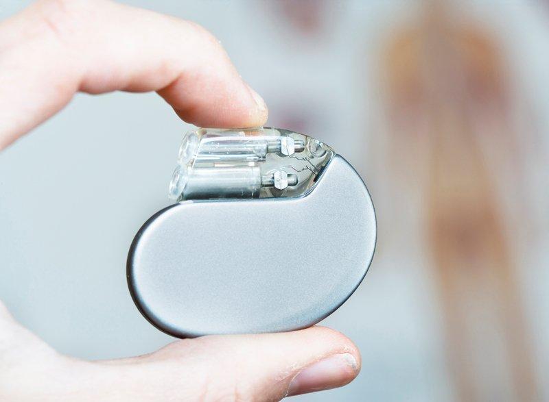 Tạo nhịp tim là gì? và khi nào đặt máy tạo nhịp tim? - ảnh 1