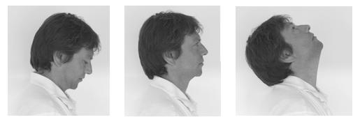 Hướng dẫn vật lý trị liệu dành cho bệnh nhân xạ trị vùng đầu cổ - ảnh 4