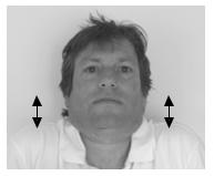Hướng dẫn vật lý trị liệu dành cho bệnh nhân xạ trị vùng đầu cổ - ảnh 5