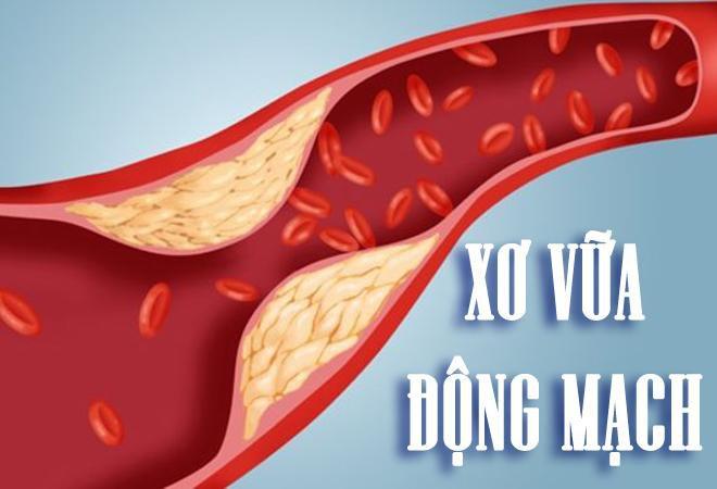 Chuẩn đoán chính xác mức độ xơ vữa động mạch vành nhờ kỹ thuật siêu âm hiện đại - ảnh 1